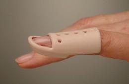 mallet-vinger-tips-behandeling